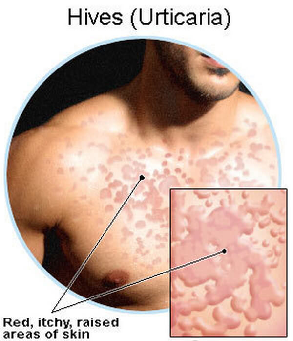 Cholinergic Urticaria picture