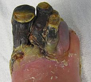 Discoloration of the skin that had affected the four fingernails due to diabetes picture