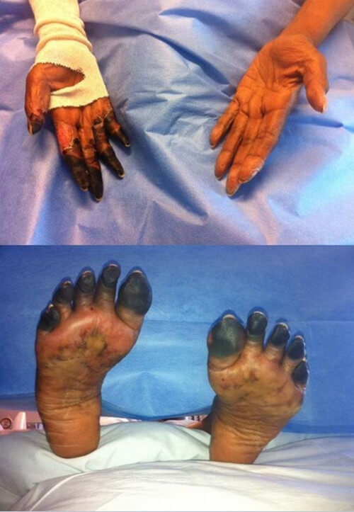 gas gangrene picture