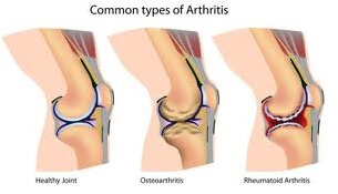 Common Types of Arthritis photo
