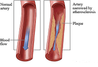 Atherosclerosis Plaque deposition on the arteries may block the blood flow thus hindering sufficient blood flow to the feet and toes picture