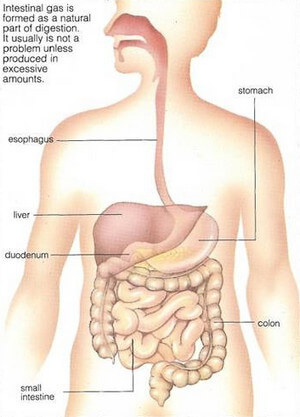 Abdominal Gas picture