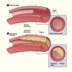 Narrowing of arteries in atherosclerosis image