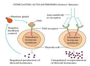 Graves disease as an autoimmune disorder picture