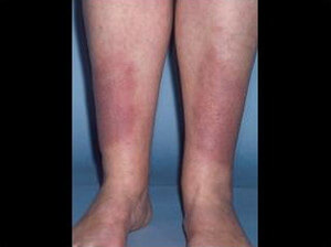 A patient with Graves Disease exhibiting pretibial myxedema on both lower extremities photo