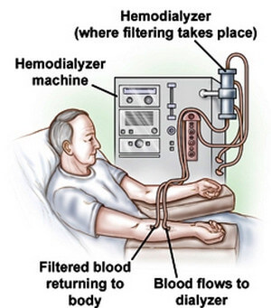 Hemodialysis, a treatment for severe hypervolemia picture