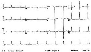 ECG showing ventricular dysrhythmia picture