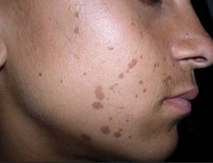 A patient with warts on his face picture