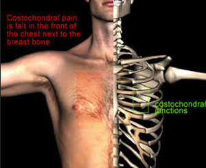 Costochondral pain felt at the costochondral junctions, not only nest to the breastbone, but also beneath the right rib cage image