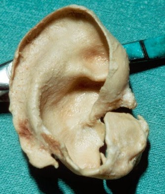 Ear cartilage image