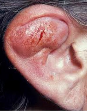 ear affected by perichondritis picture
