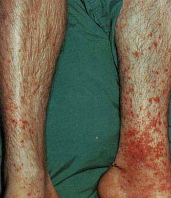 Senile Purpura on lower legs image