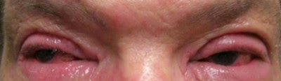 Swollen eyelids on both eyes picture