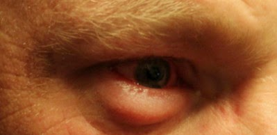 Swollen lower eyelid photo