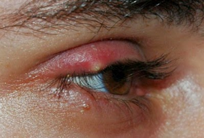 Swollen Eyelids - Causes, Pictures and Treatment