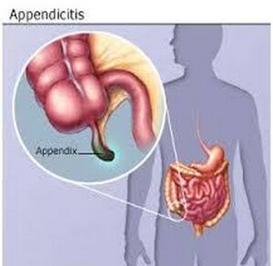Inflammation of the appendix can cause referred pain to the underside of the right thoracic cage image