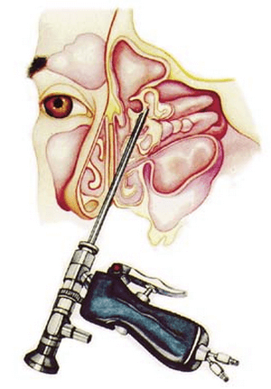 An illustration shows an endoscopic sinus surgery being done to remove nasal polyps image