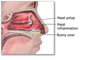 A few of the signs and symptoms characteristic of nasal polyps: nasal inflammation and runny nose picture