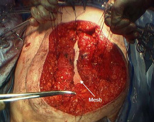 open hernia repair using a mesh image
