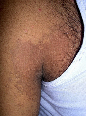 These are the rashes of Tinea versicolor, non-elevated and hyperpigmented picture