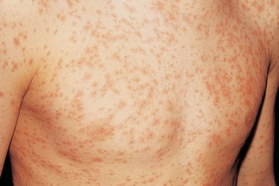 Early HIV rash image