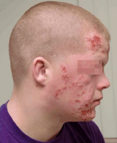 HIV rash on face image