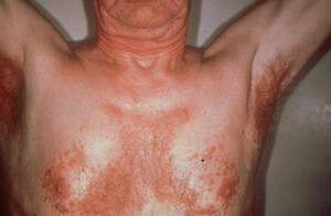 eborrheic Dermatitis on the chest and underarms image