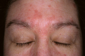 Seborrheic Dermatitis on Forehead picture