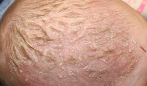 Form of Seborrheic Dermatitis in Infants (Cradle Cap) picture