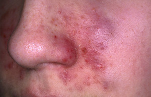 Seborrheic Dermatitis on sides of the nose image