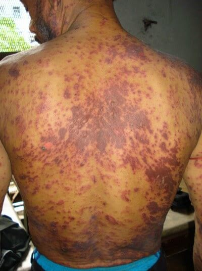 Skin rash due to anti HIV drug Lamivudine picture