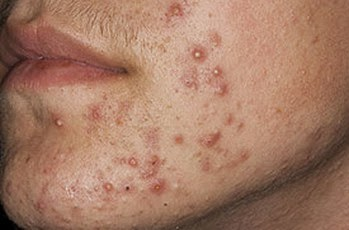 Folliculitis on face image