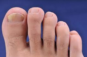 Fungal infection of the toes image
