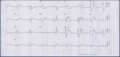 ECG shows progressing hyperkalemia picture