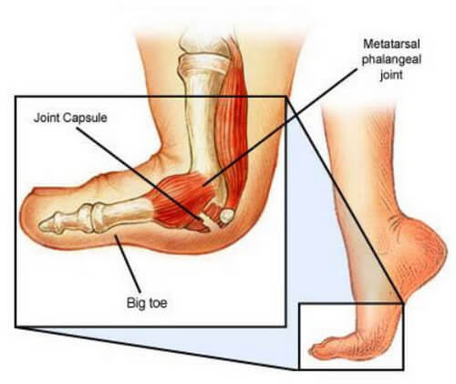 Turf toe refers to sprain of the plantar capsule ligamentous complex of the metatarsophalangeal joint of the great toe image