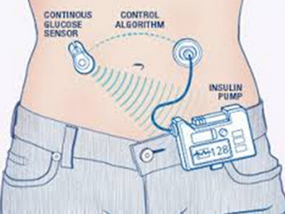 Artificial Pancreas pictures