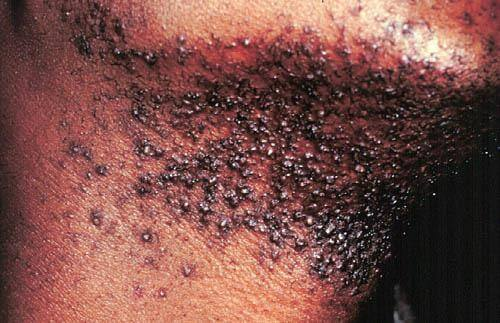 How To Get Rid Of Ingrown Hair Cyst And Treatment