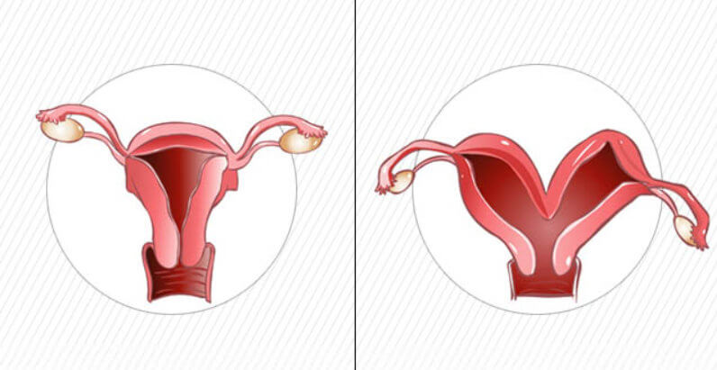 Normal vs Bicornuate Uterus picture