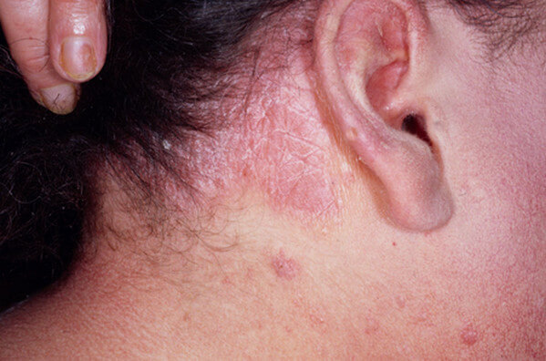Psoriasis of the Scalp picture