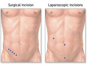 Location of incisions in open and laparoscopic appendectomy picture