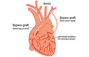 Coronary bypass surgery picture