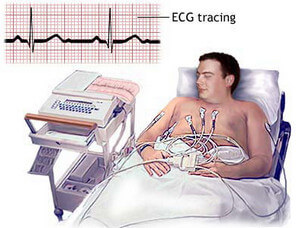 Electrocardiogram picture
