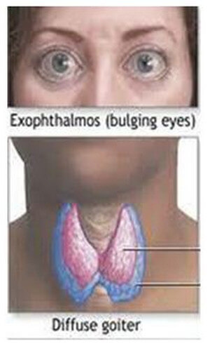 Graves Disease is manifested Image