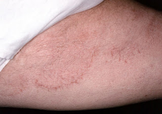 Jock itch in men (thigh) picture