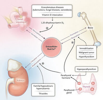 Causes of Hypercalcemia picture