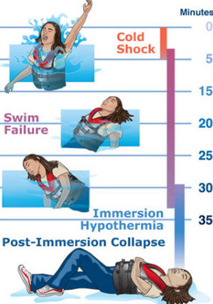 Hypothermia in cold water immersion picture