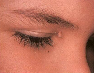 A filiform wart on the face, near the eyelid image