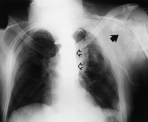 the chest radiograph of a 28-year-old patient who was diagnosed with neuropathic osteoarthropathy photo