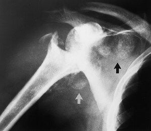 extensive resorption on the affected portion while bone mineralization is maintained for the remaining viable part of the humerus picture