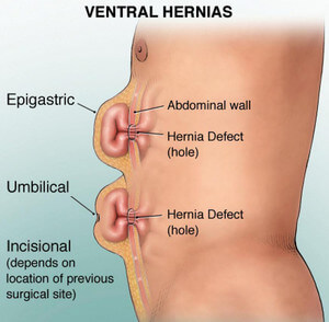 how to fix an umbilical hernia without surgery